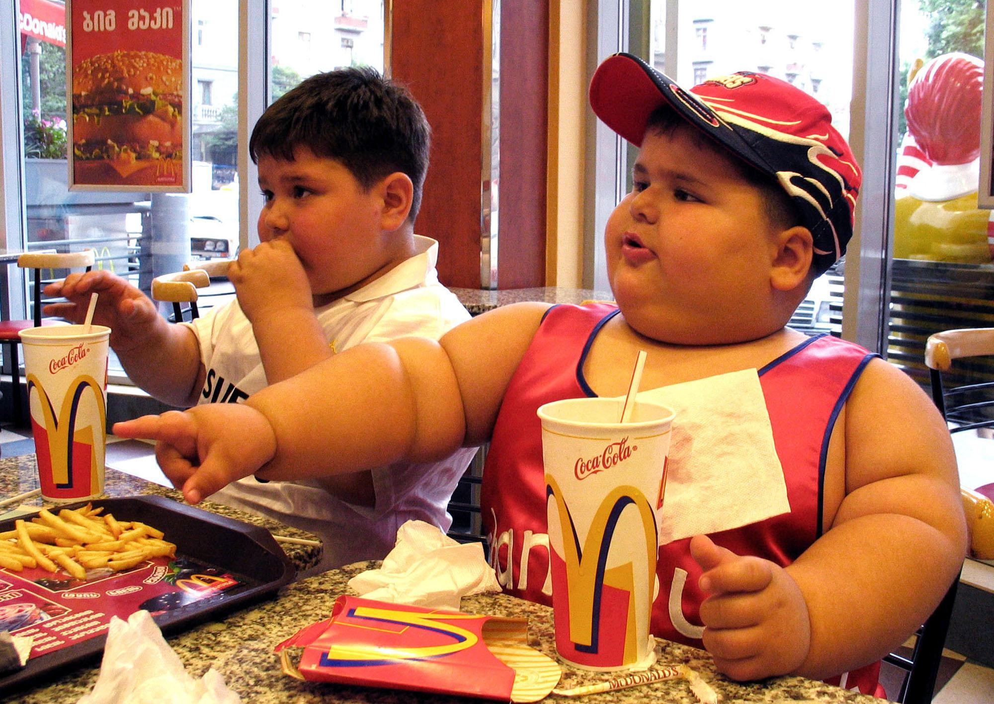 Resultado de imagen de obesidad infantil